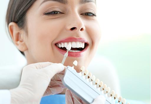 Servicio de carillas dentales en Madrid