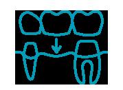 Dentistas especializados en prótesis fijas